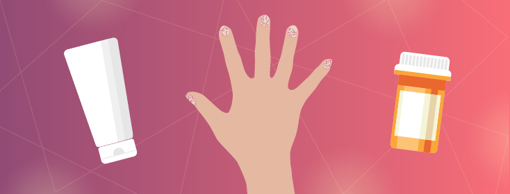 Treatment Options for Nail Psoriasis