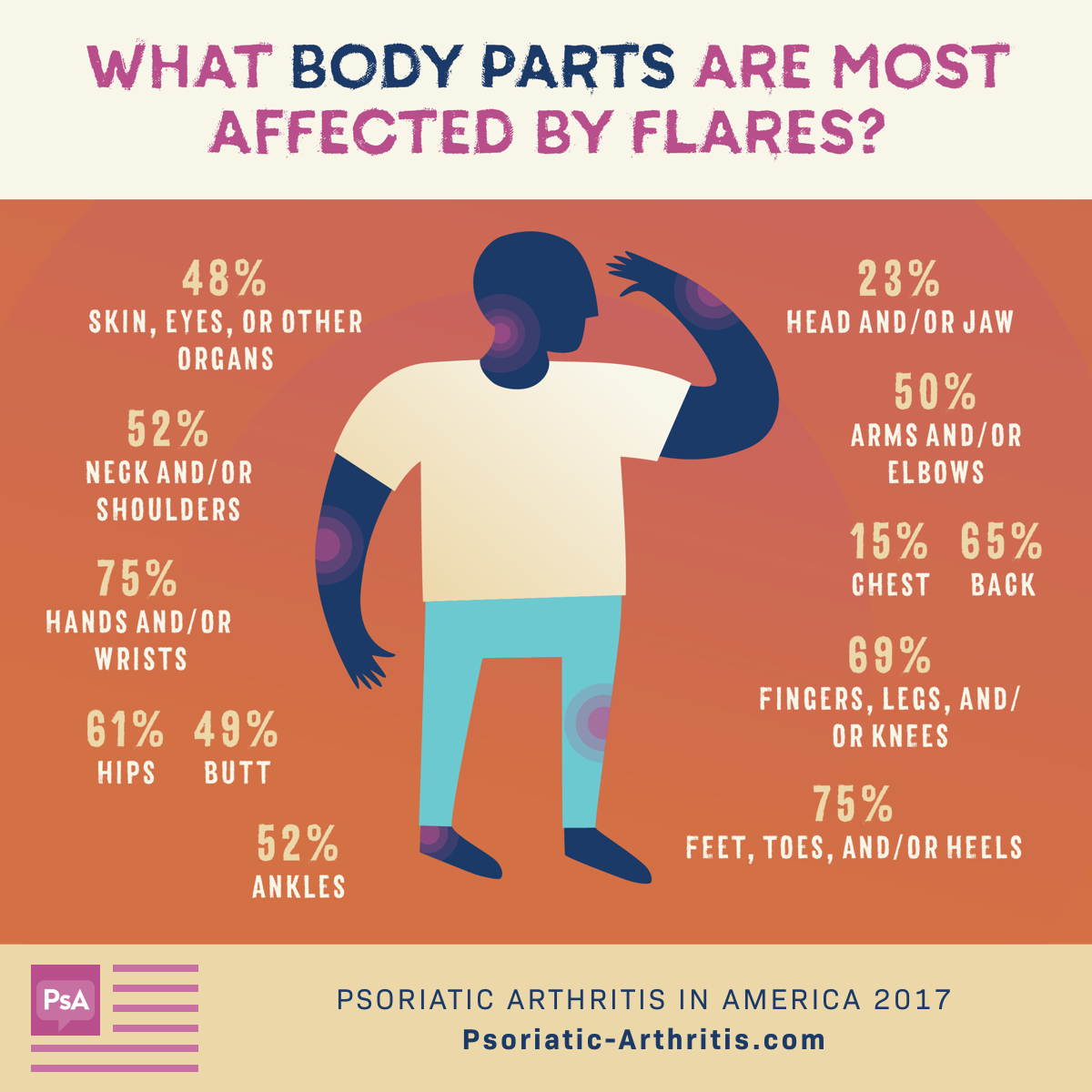 Body Parts Affected by Flares
