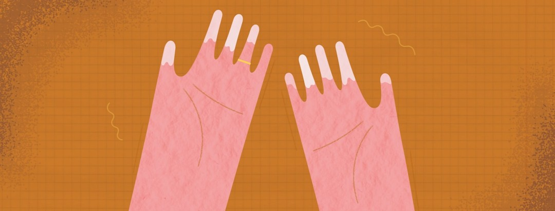 Hands showing whitened fingers due to Raynaud's disease