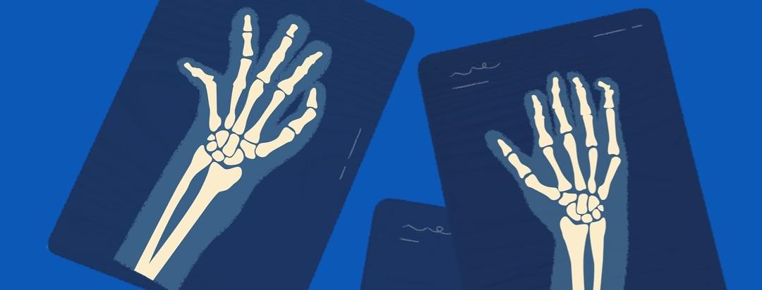 What Is Psoriatic Arthritis Mutilans Psoriatic Arthritis Com