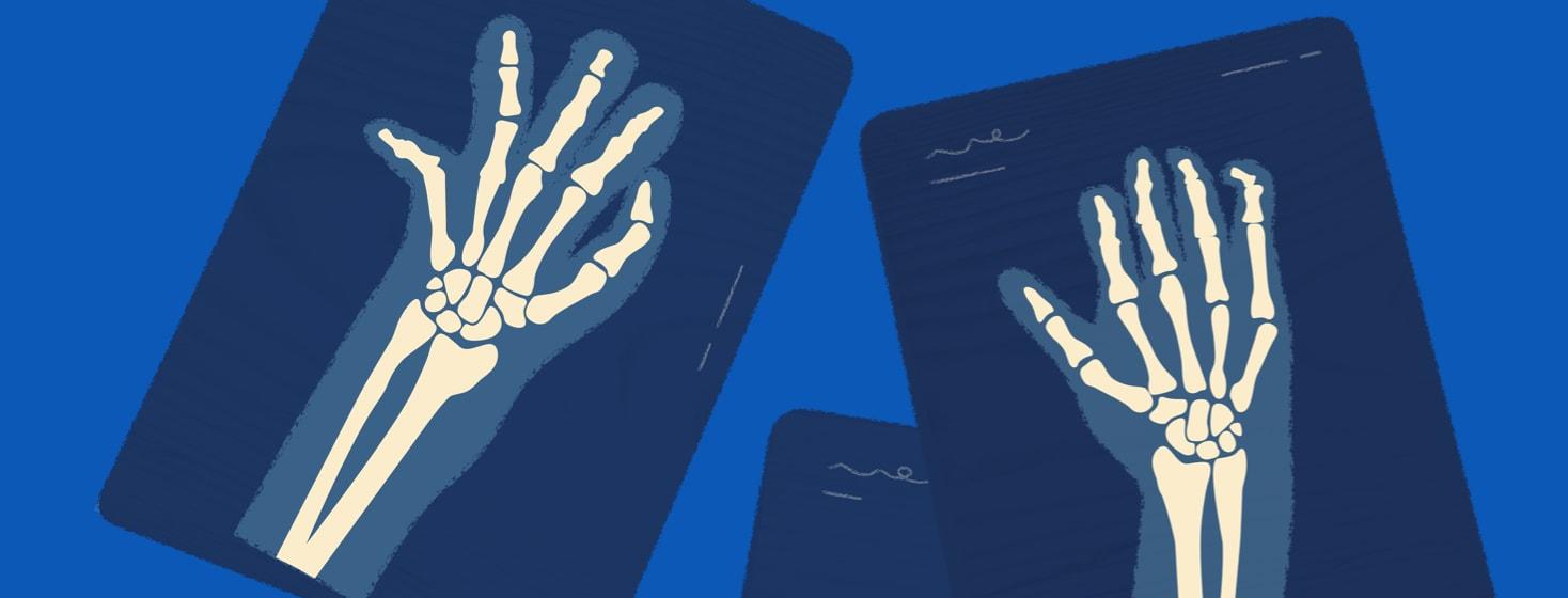 What is Psoriatic Arthritis Mutilans?