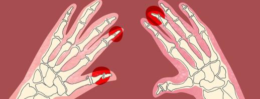 Pencil-in-Cup Deformity and Psoriatic Arthritis image