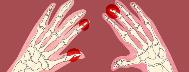 X-ray hands showing psoriatic arthritis pencil-in-cup deformity