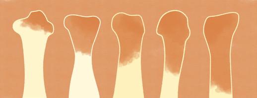 Psoriatic Arthritis and Bone Erosions image