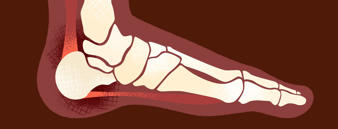 Cross-section of a foot with enthesitis