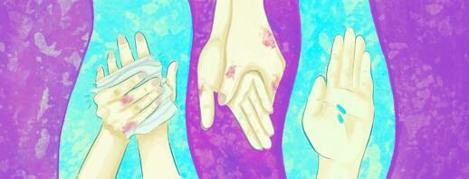Psoriatic Arthritis in the Hands image